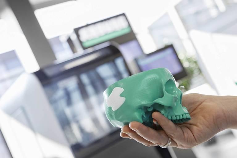Große Potenziale für die Additive Fertigung mit Originalmaterial bietet die Medizintechnik. Exemplarisch fertigt ein Freeformer z. B. aus einem medizinischen PLA-Standardgranulat ein individuell angepasstes Implantat für Schädelknochen.