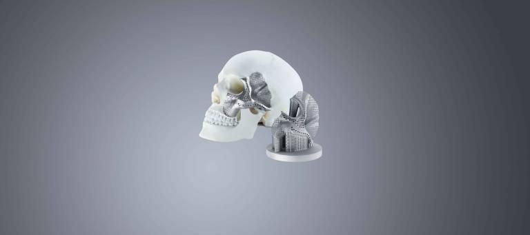Der Medizintechnik-Hersteller Conmet produziert mit einem 3D-Drucker von Trumpf Schädel- und Kieferimplantate für die GUS-Länder.