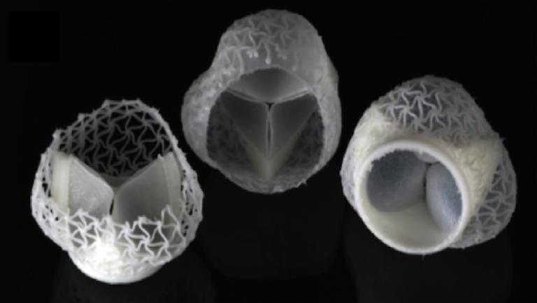 Individualisierte Herzklappen für die Operationsprothetik sind ein Beispiel, was mit den Lösungen von Spectroplast möglich ist.